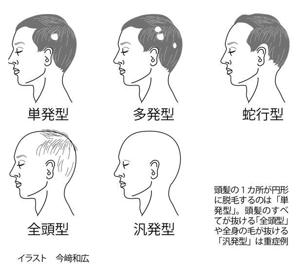 円形脱毛症2.jpg