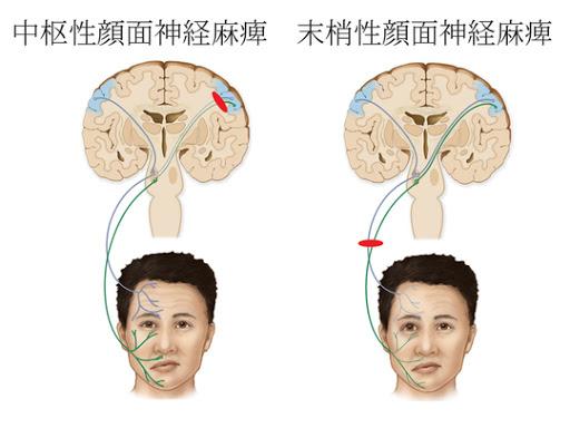 顔面麻痺2.jpg